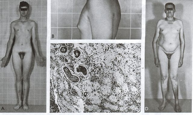 klinefelter syndrome skinny fat