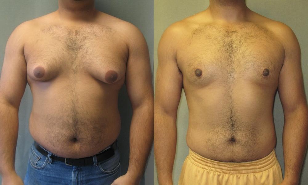 gynecomastia skinny-fat