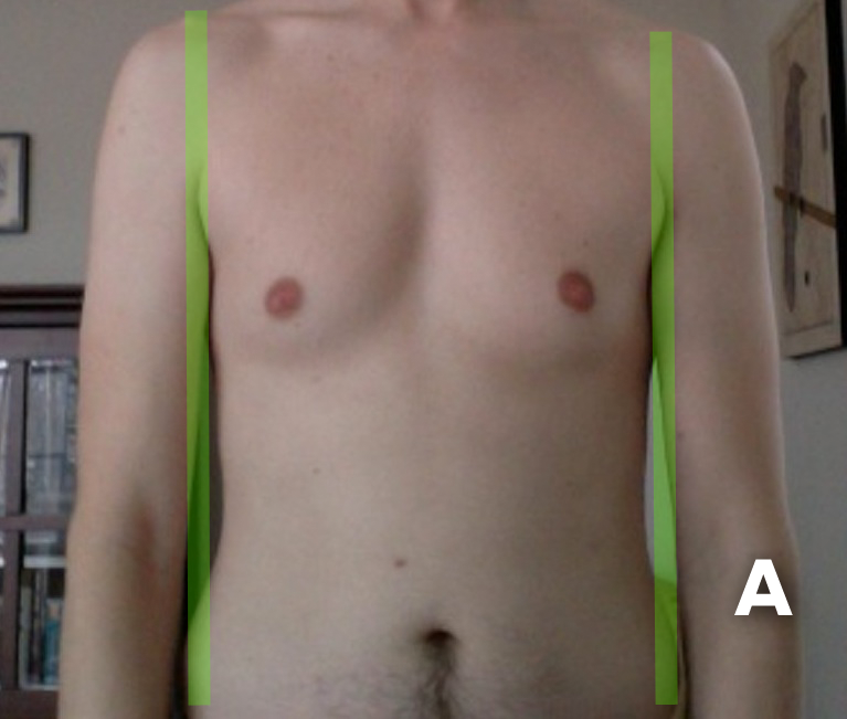 "The ""A"" Body Type of Skinny-Fat Syndrome"